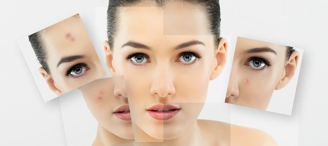 What Are Some Acne Solutions that REALLY Work?