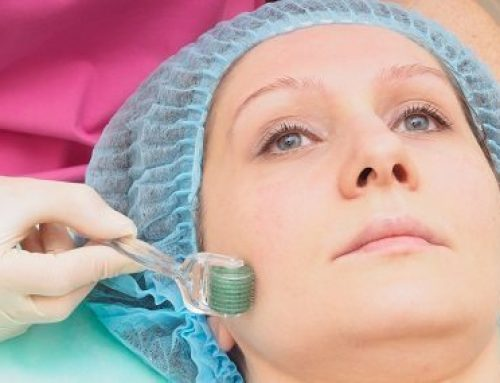 Microneedling: Why You Shouldn't Go DIY