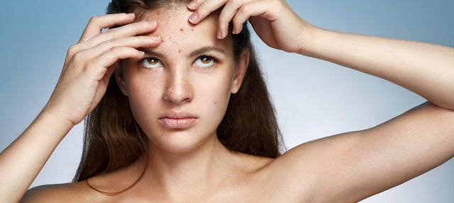 What Can Be Done About Acne at Home?