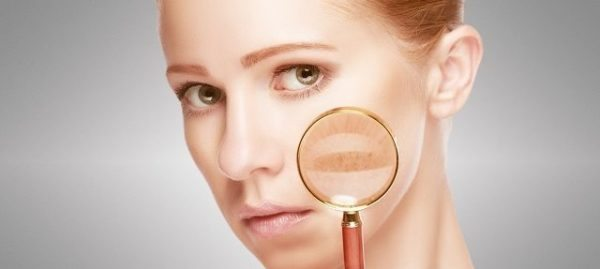 Add Microneedling in Your Battle with Melasma