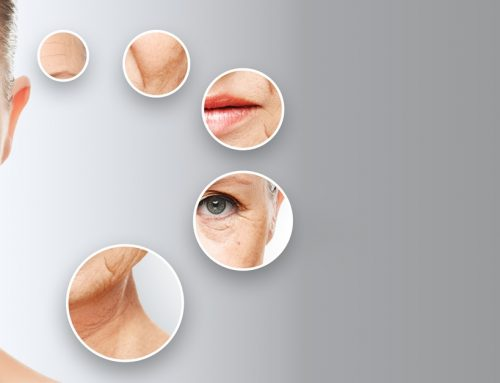 Reversing Signs of Aging with Photofacials