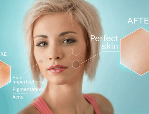 The Skin-Rejuvenating Benefits of Laser Genesis