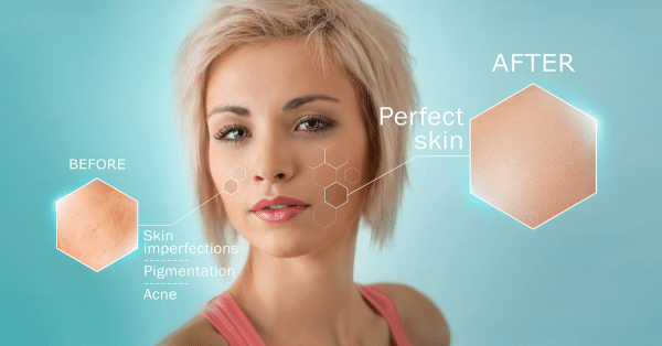 The Skin-Rejuvenation Benefits of Laser Genesis